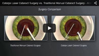 Cataract Surgery provided by ECVA Eye Care