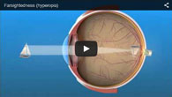 Hyperopia (Farsightedness) treated by ECVA Eye Care
