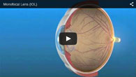 Monofocal Lens IOL for Astigmatism provided by ECVA Eye Care