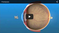 Presbyopia treated by ECVA Eye Care